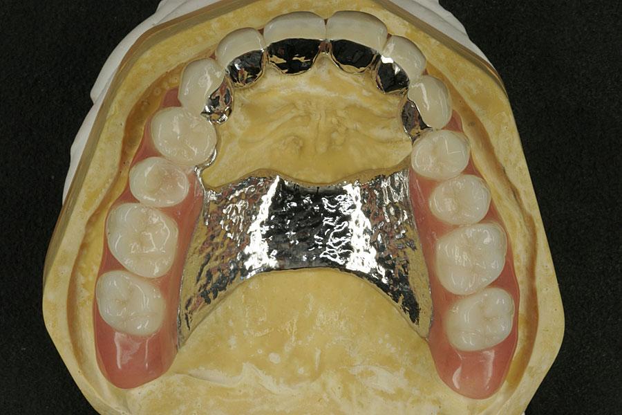 Dental keramik u2022 technik