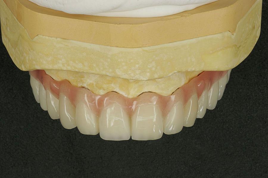 Dental keramik u technik